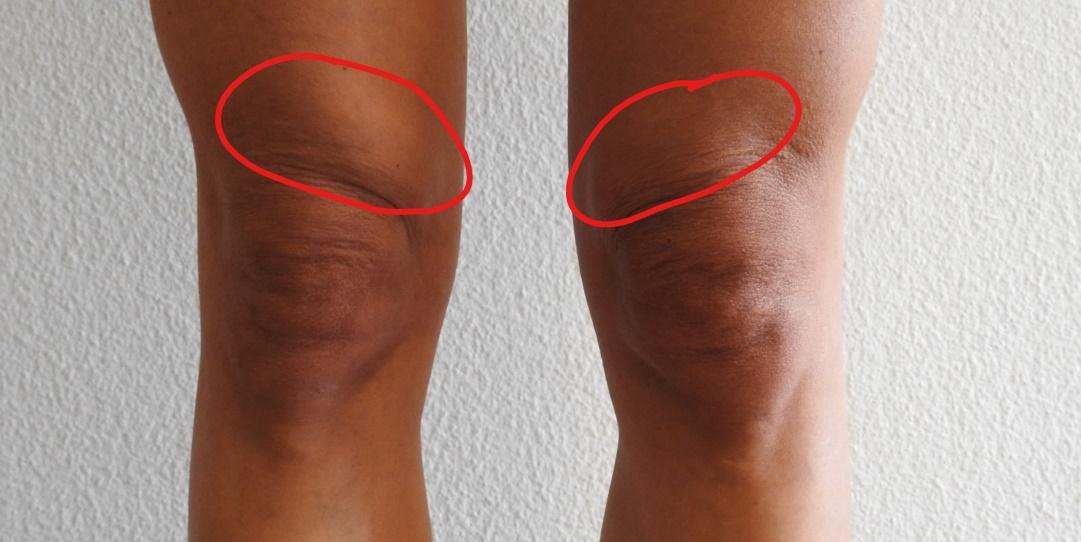 Dickes Knie Wassereinlagerung